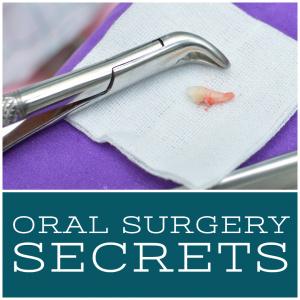 oral surgery secrets