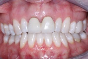 Esthetic Gingival Covering of Exposed Crown Margins, 2nd Edition - V4353 - CE Video Library