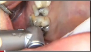 Optimal Fixed Prosthodontic Tooth Preparations - V1925 - CE Video Library