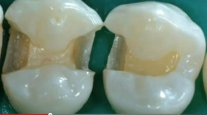 Sealants and Preventive Resin Restorations – When & How - V5143 - CE Video Library