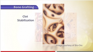Bone Grafting - Patient Education - Patient Education