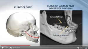 Opening Vertical Dimension of Occlusion - V3186 - Occlusion - CE Video Library