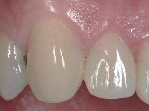 Esthetic Dentistry Package - Esth2018