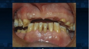 Bruxism and Clenching - Patient Education - Patient Education