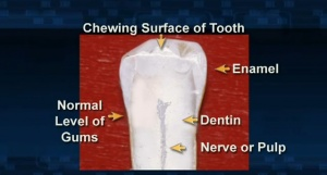 Cracked Teeth - Patient Education - Patient Education