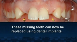Standard Implants - Patient Education - Patient Education