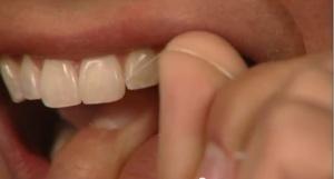 Oral Hygiene - Patient Education - Patient Education