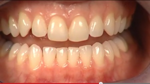Periodontal Disease - Patient Education - Patient Education