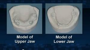 Removable Partial Dentures - Patient Education - Patient Education