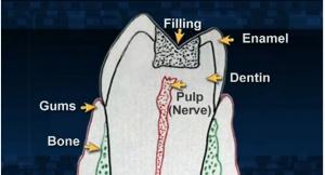 Root Canals - Patient Education - Patient Education