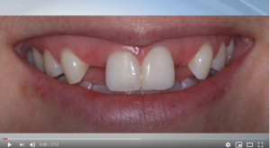 Restoration of Complete and Partial Edentulism - V2503 - Prosthodontics, Removable - CE Video Library