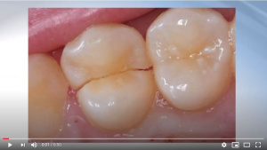 Reliable, Simple Treatment of Cracked Teeth - V1904