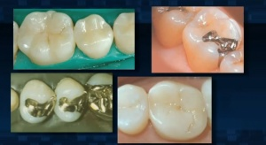 Tooth Restorations (Fillings) - Patient Education - Patient Education