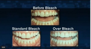 Whitening Teeth - Patient Education - Patient Education