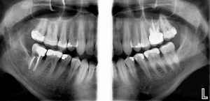 Optimizing Digital Radiography - Solving Challenges - V1119 - Dental Assisting - CE Video Library