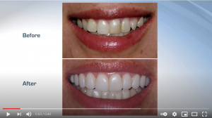 Cementing Restorations - Proven & Successful! - V1921 - CE Video Library