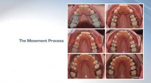 Proven and Effective Alternative Dental Medicine - V3923